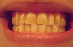 teeth significant wear
