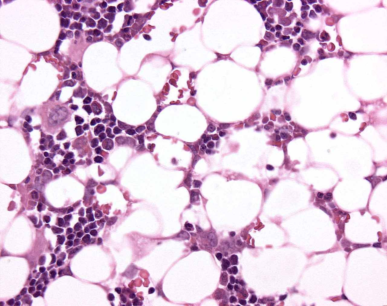 Rat SternalBoneMarrow An66 Treated 60X H&E.jpg